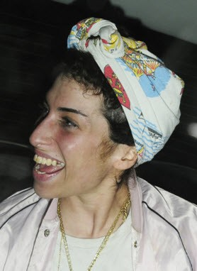 Amy Winehouse S Teeth 171 Shefinds