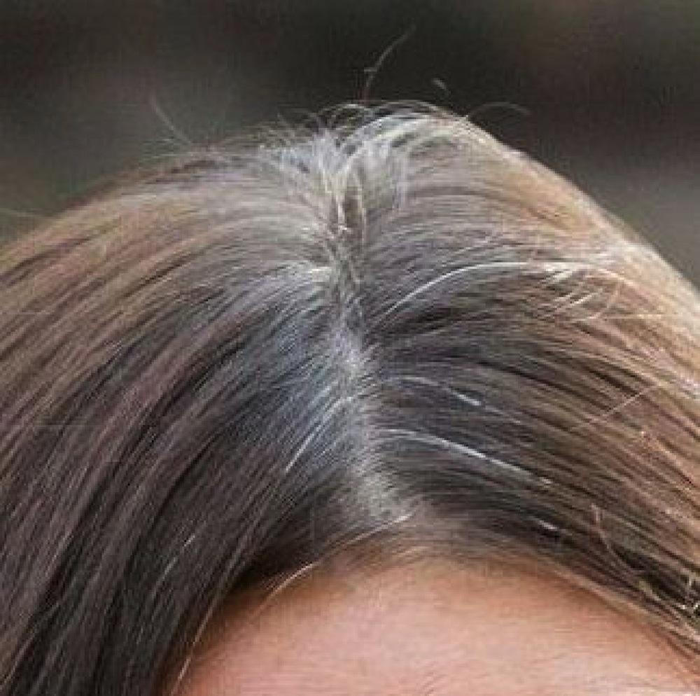 Kate Middleton Grey Hair Close Up