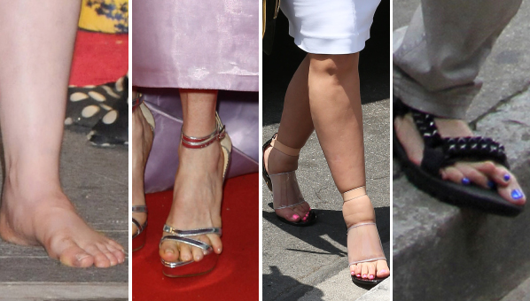 Worst Celebrity Feet Ugly Celebrity Feet Gross