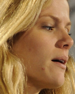 Celebrities With Acne | Celebrities With Pimples ...