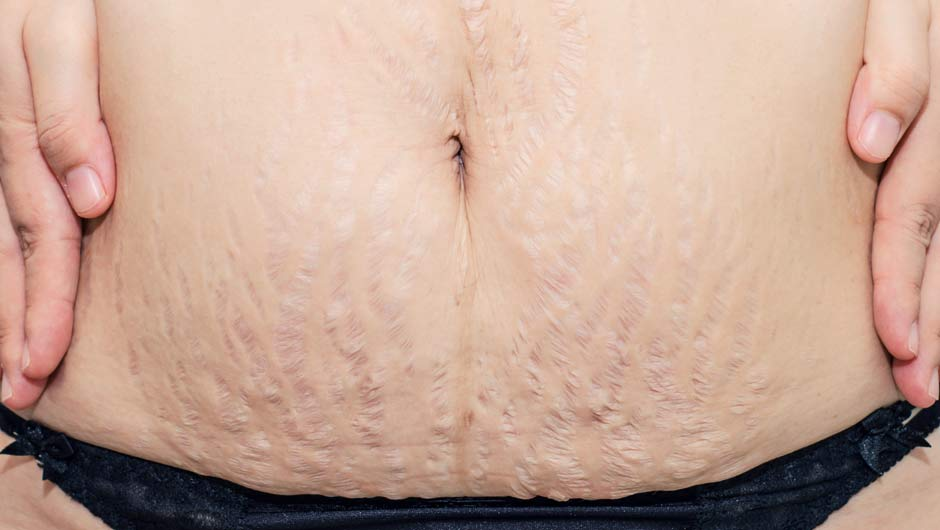 Top 10 Remedies To Remove Stretch Marks