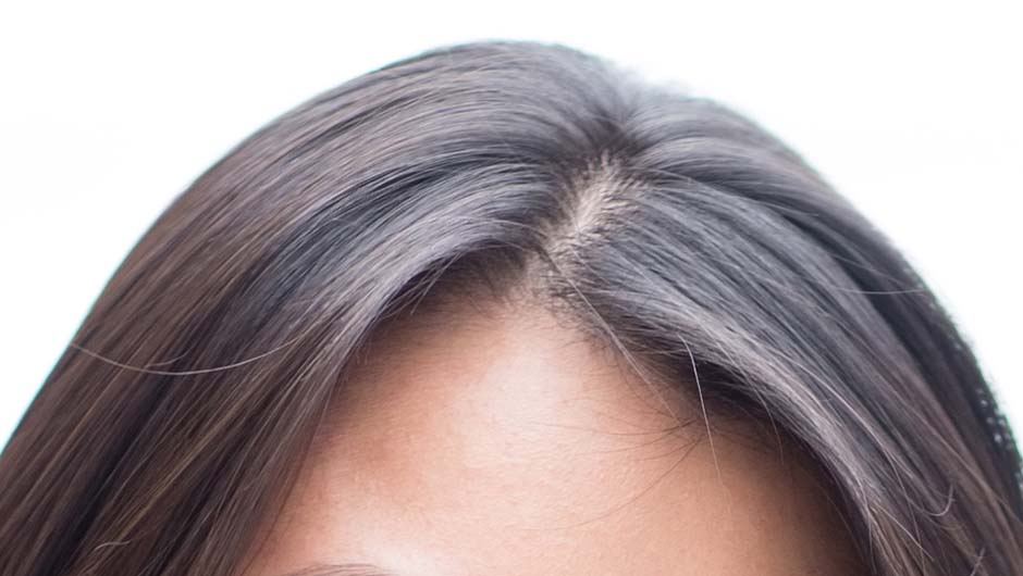 Scalp Botox Is The Latest Hair Care Trend - SHEfinds