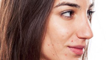 What Acne On The Face Means