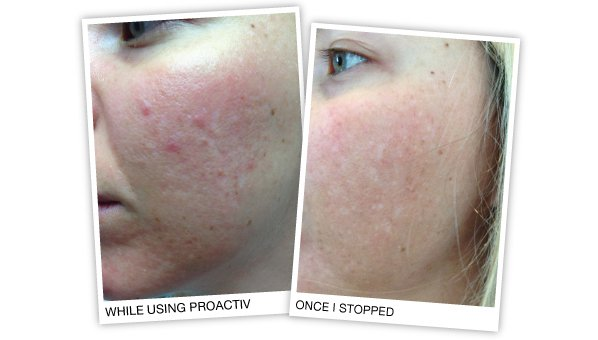 effects of proactiv on the skin