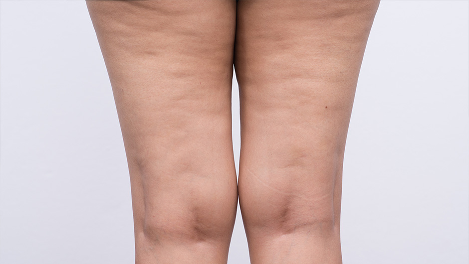 The Worst Thing To Eat If You Have Cellulite, According To A Nutritionist