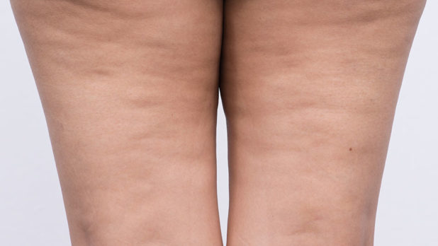 The Worst Processed Foods For Cellulite, According To A Nutritionist