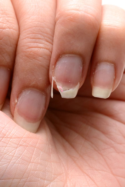 The One Thing You Should Never Do To A Broken Nail - SHEfinds