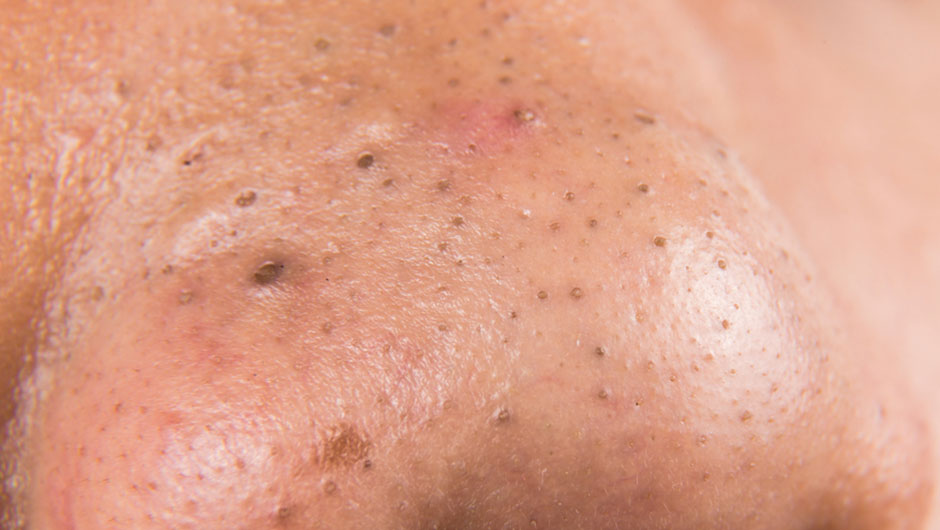 The Right Way To Get Rid Of Blackheads, According To A Dermatologist