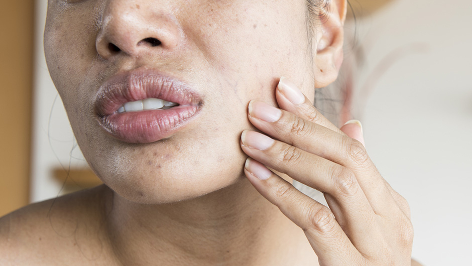 The One Thing You Should Never Do To Dry Skin, According To A Dermatologist