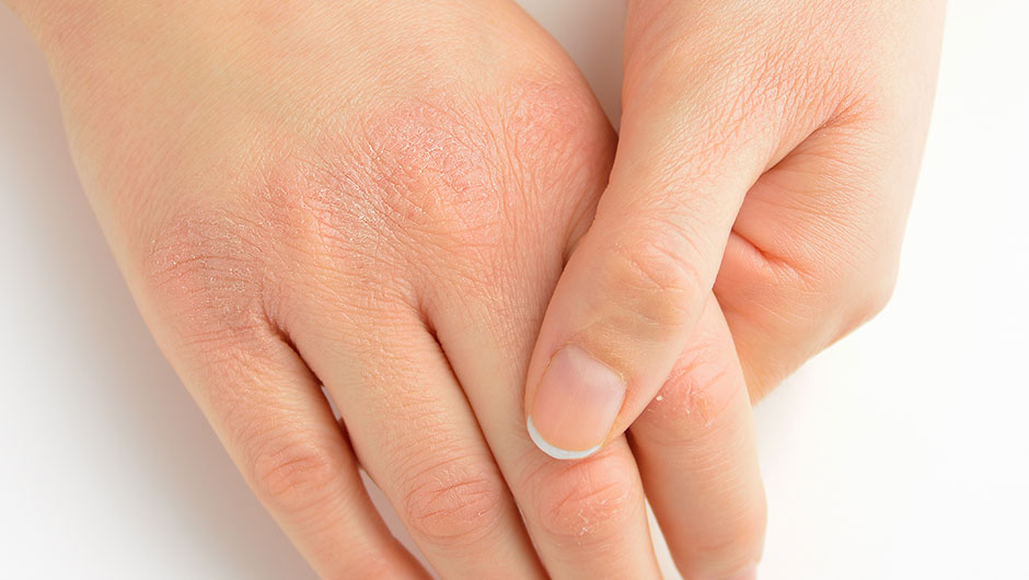 The Right Way To Get Rid Of Dry, Cracked Hands, According To A ...