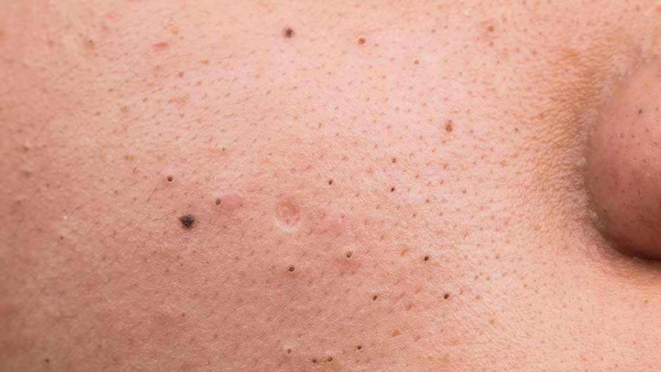 The Best At-Home Remedies For Blackheads