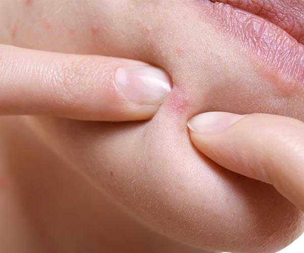 Pimple Popping Mistakes That Are Aging You - SHEfinds