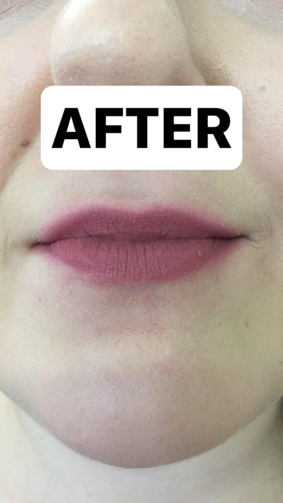 juva lips review after