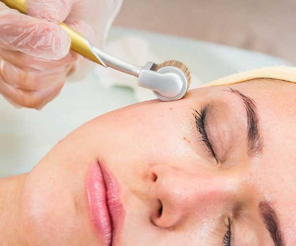 microneedling procedure dermatologist