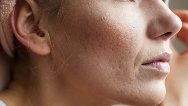how to get rid of acne right away