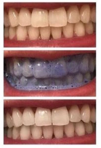 Here S How To Effectively Whiten Your Teeth At Home No