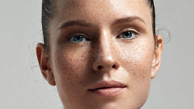 What Your Freckles Are Telling You About Your Skin