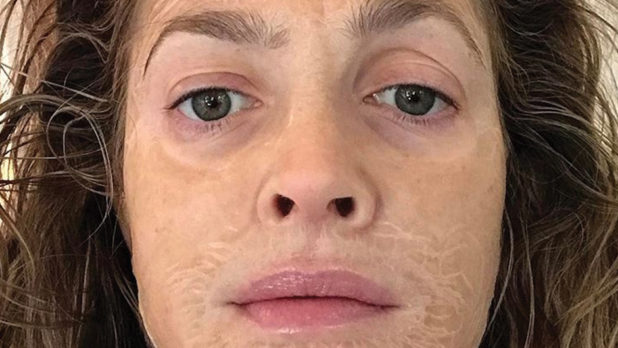 I Tried Hanacure's Skin-Tightening Face Mask, And This Is What Happened