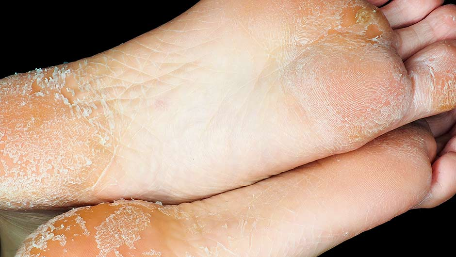 6 At Home Remedies For Peeling Feet Shefinds