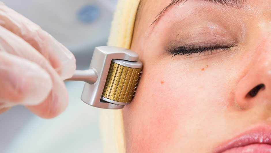 Derma-Rolling Can Give You Radiant, Healthy Skin (Without Pain) — Here's How