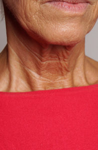 aged neck