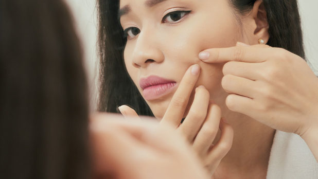The Right Way To Pop A Pimple, According To A Dermatologist