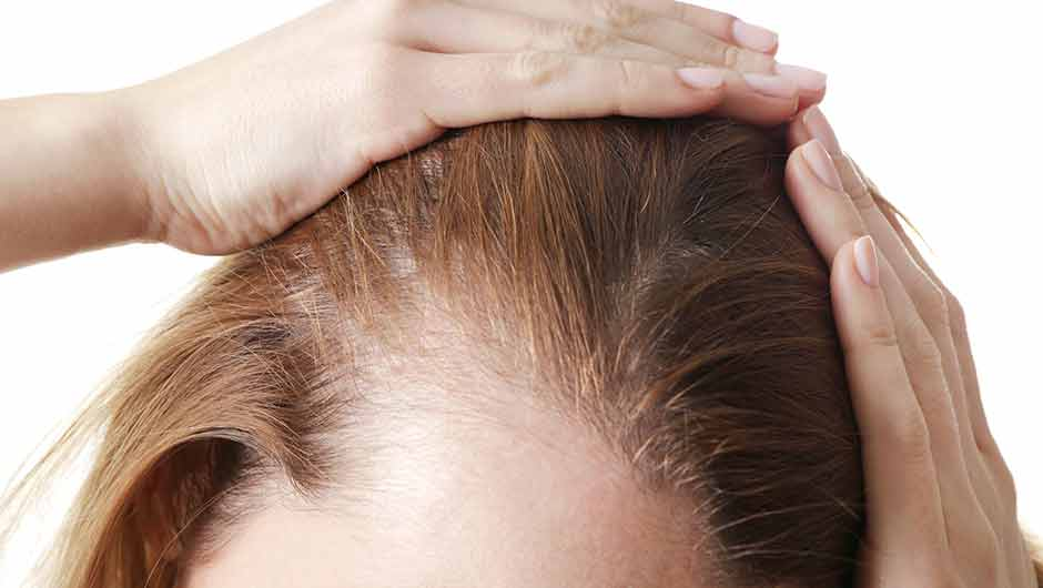 4 Anti-Inflammatory Foods You Should Eat For Thinning Hair, According To A Dermatologist