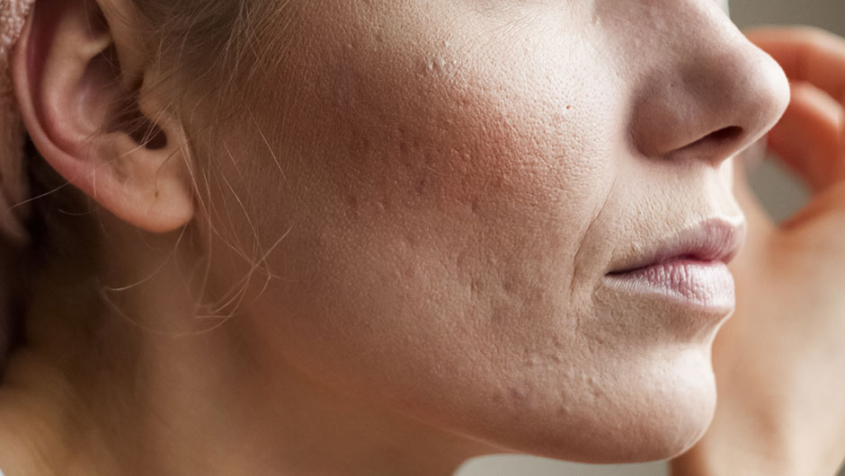 The One Product You Should Stop Using For Acne Scars, According To A Dermatologist