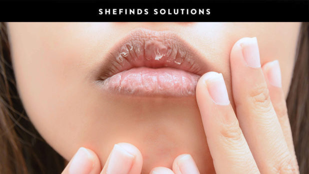 Once And For All, Here's How To Heal Dry, Cracked Lips #SheFindsSoutions
