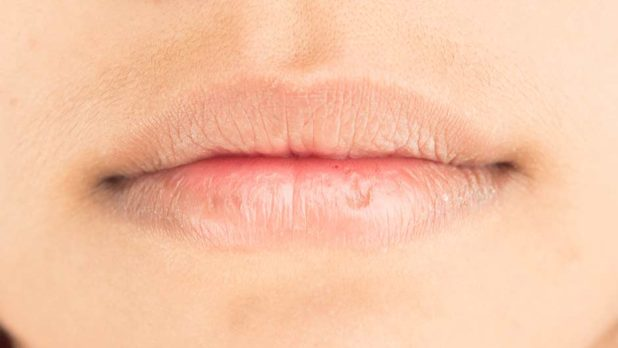 The One Chapstick That Actually Dries Out Your Lips, According To A Dermatologist