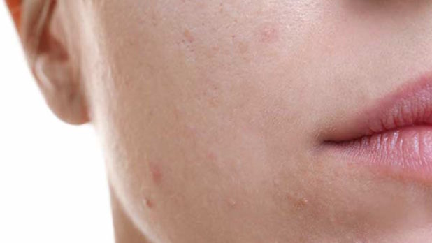 This Is The Worst Thing To Put On A Zit, According To A Dermatologist