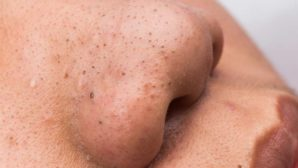 The One Cheap Natural Product Dermatologists Swear By For Blackheads