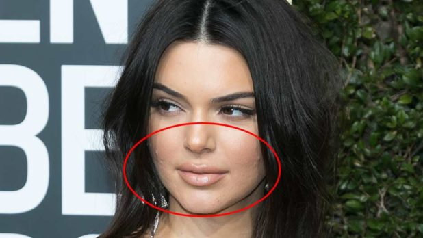 5 Celebs You Didn't Know Struggle With Acne