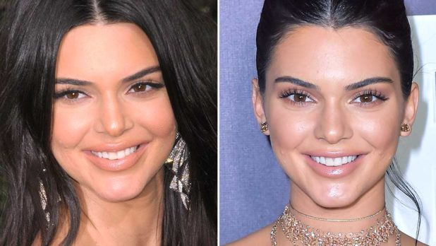 Kendall Jenner Might Have Gotten Plastic Surgery… And She Looks JUST Like Kylie Now!