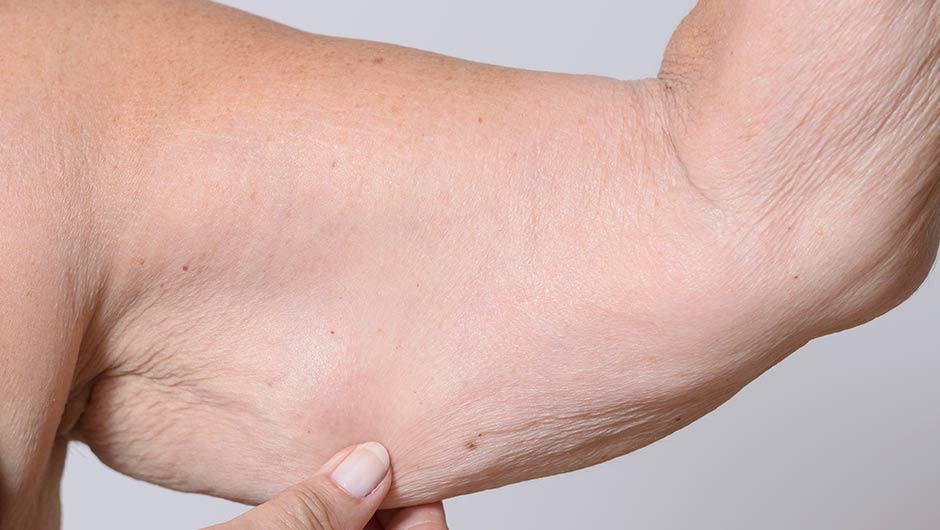 6 Easy At-Home Remedies For Sagging Skin That Dermatologists Swear By