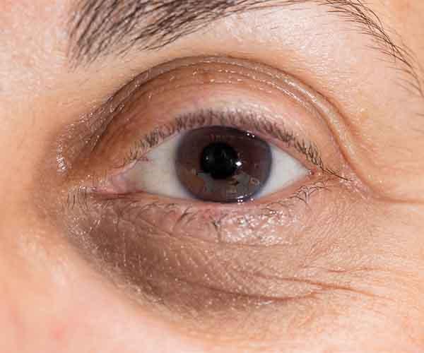 under eye product