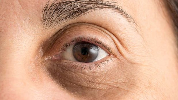 5 Cheap Natural Eye Creams Dermatologists Swear By For Under-Eye Bags