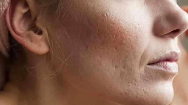 5 Cheap Drugstore Products Dermatologists Swear By For Acne That Actually Work