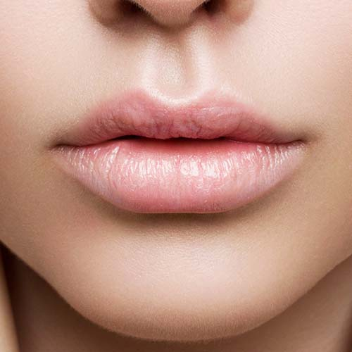 I Tried Lip Fillers For The First Time–Here's Everything You Need To