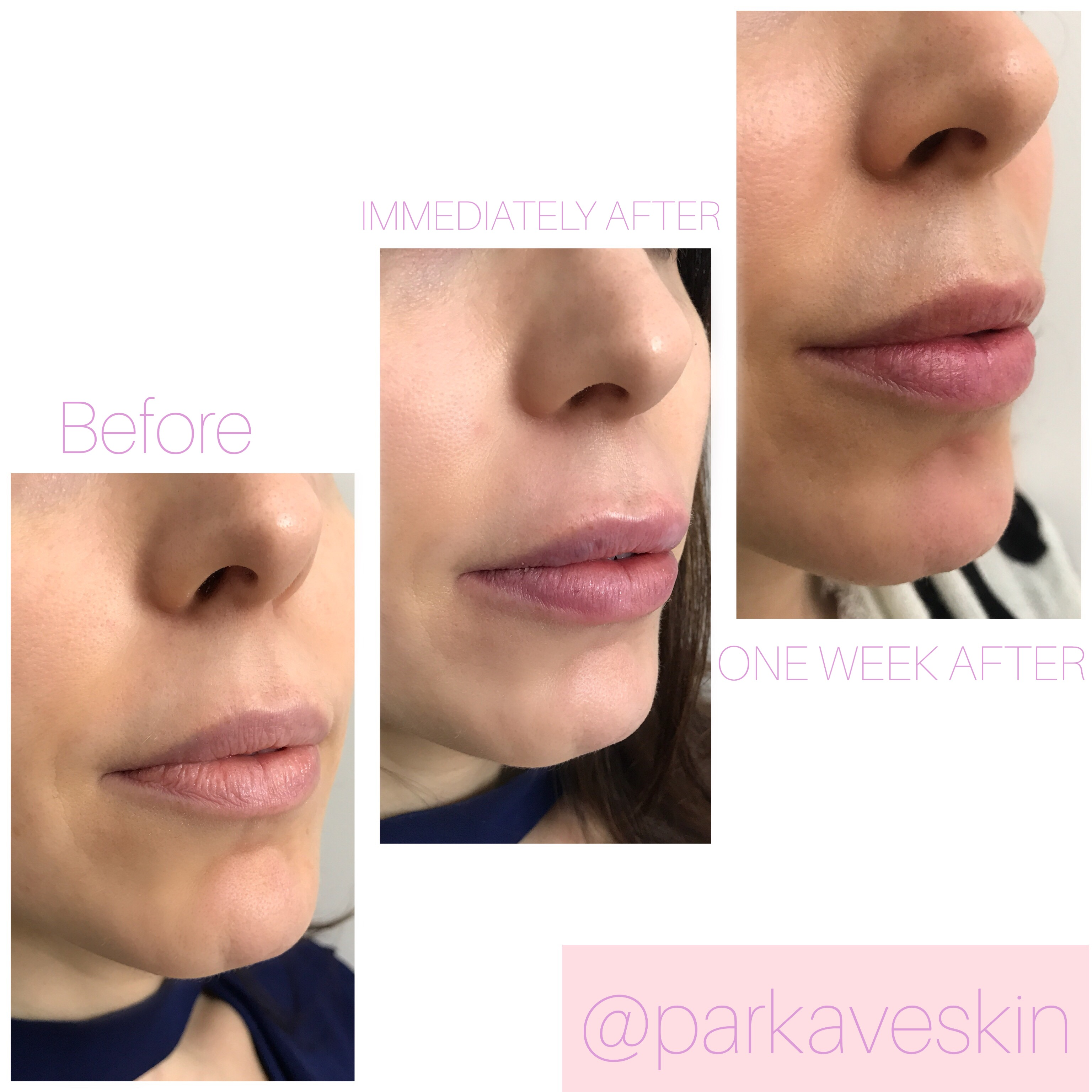 I Tried Lip Fillers For The First Time–Here's Everything You