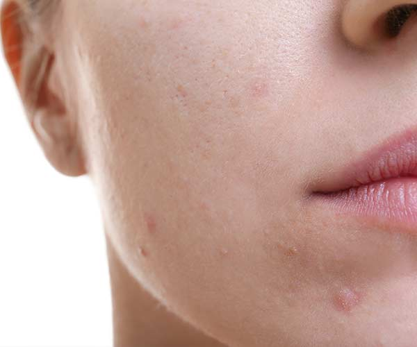 food causes acne
