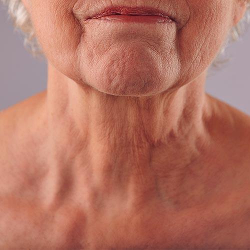 crepe skin