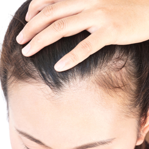 This Thinning Hair Product Is Selling Out At Target Because It Makes Hair Grow Back Overnight