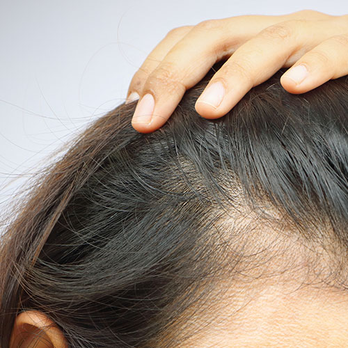 The One Supplement You Should Have Every Morning To Prevent Hair Loss, According To An Expert