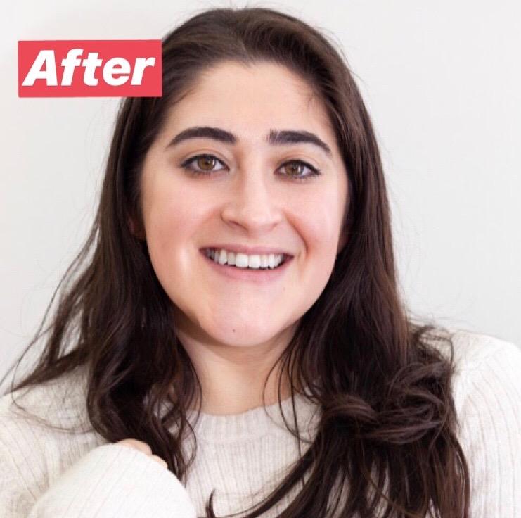 hismile teeth whitening kit review
