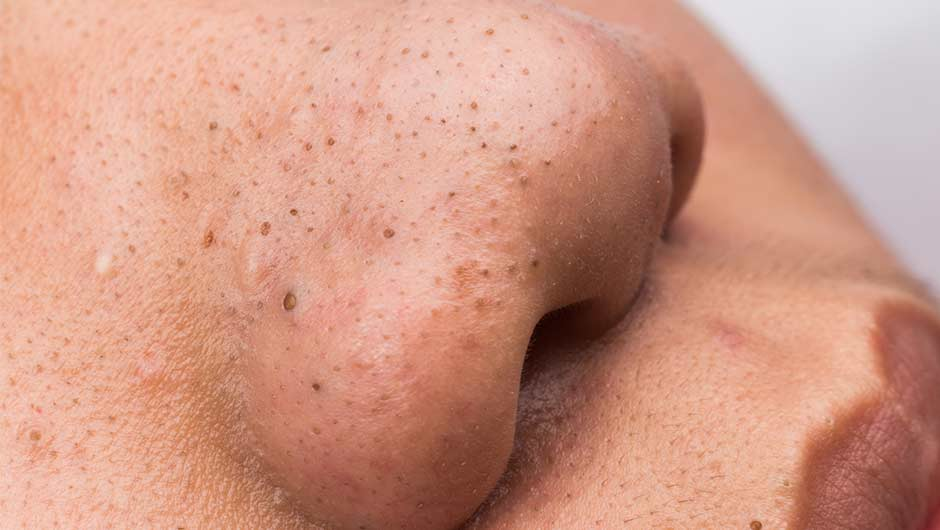 The One Food You Should Never Have Before Bed Because It Causes Blackheads