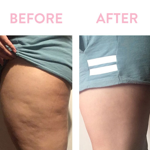 Does Cupping Really Work For Cellulite? I Tried It!