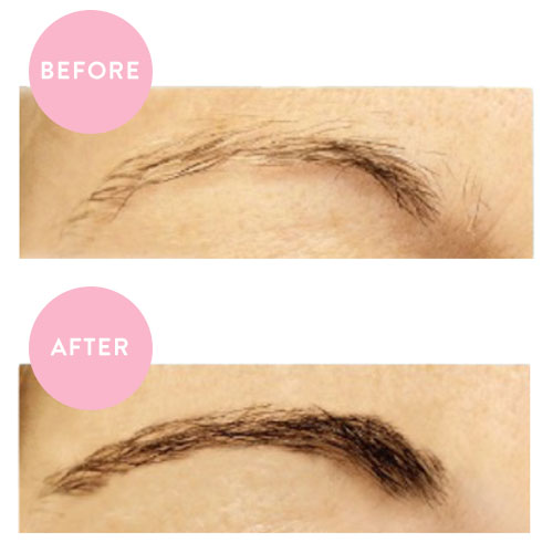I Tried This Top-Rated Brow Serum & My Brows Look SO Different: NeuBrow