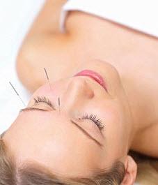 acupuncture botox
